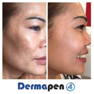 Dermapen review: Can it be used on any skin colour?