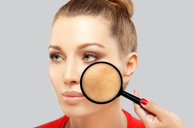 Handy tips for: Pigmentation