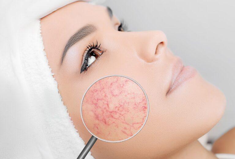 Handy tips for: Facial redness