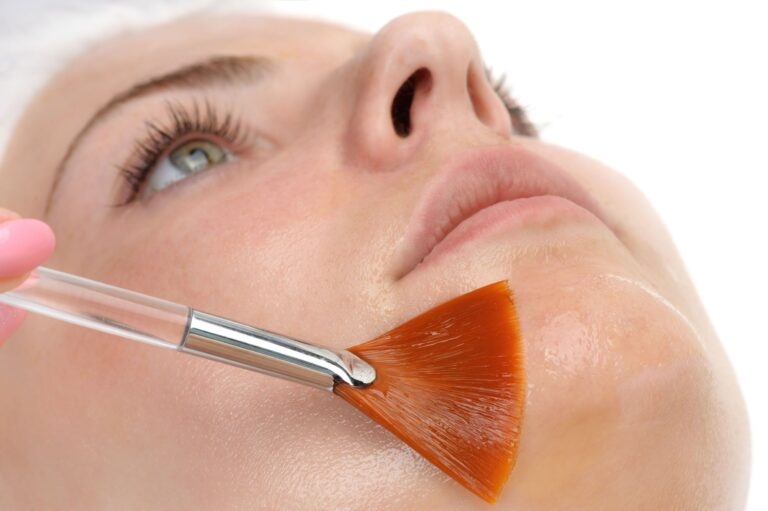 Uncovering Face Peels: How do they work?