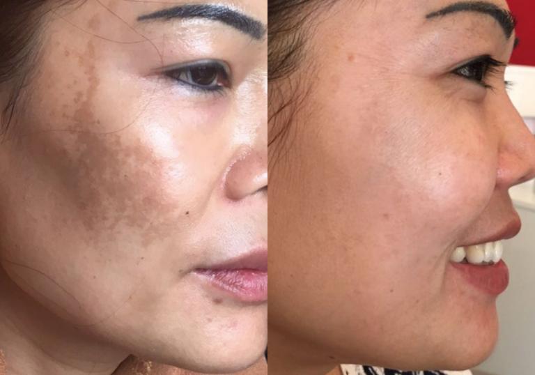 dermapen microneedling for asian skin pigmentation