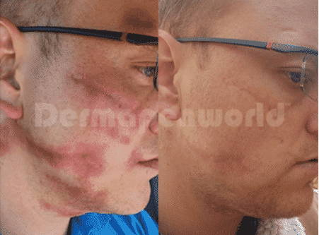 Scarring - 3 Treatments