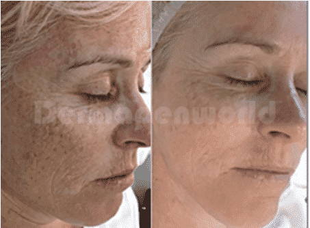 results from dermapen microneedling treatment for anti aging