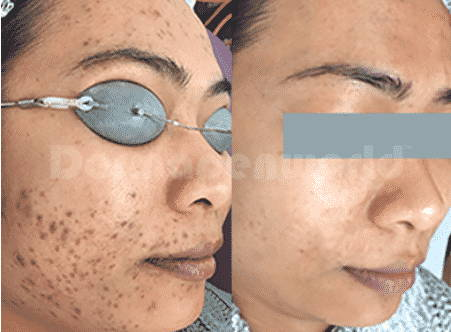 Acne Scarring - 3 Treatments