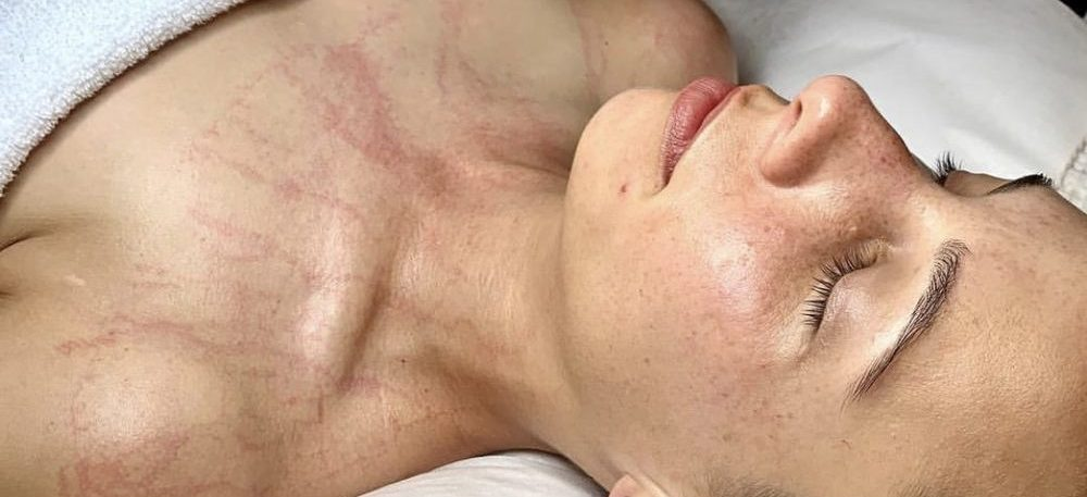 PRIN Lymphatic Therapy Facial